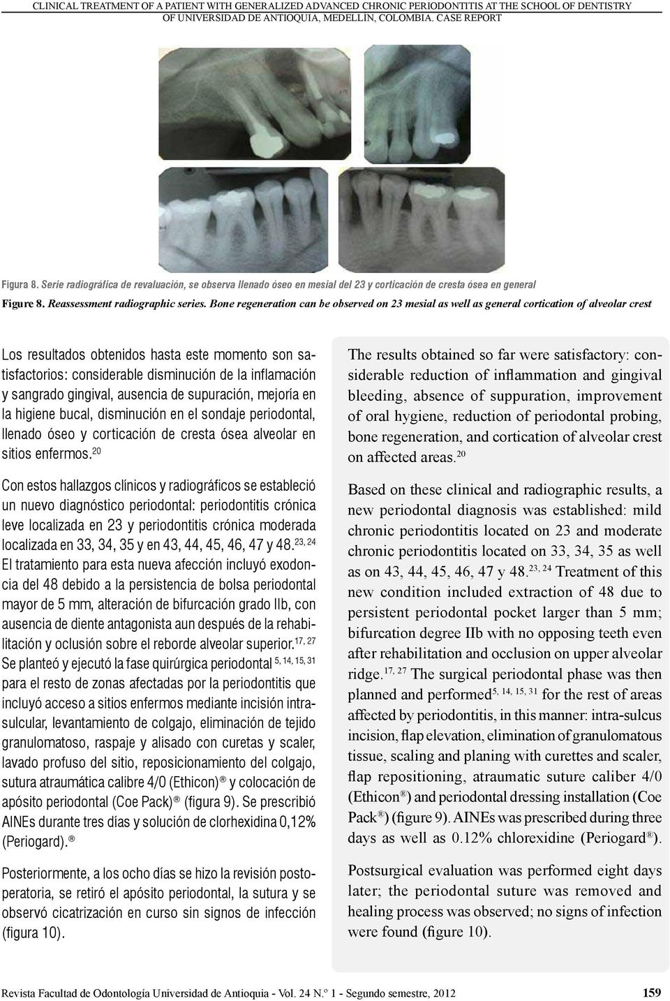 Bone regeneration can be observed on 23 mesial as well as general cortication of alveolar crest Los resultados obtenidos hasta este momento son satisfactorios: considerable disminución de la