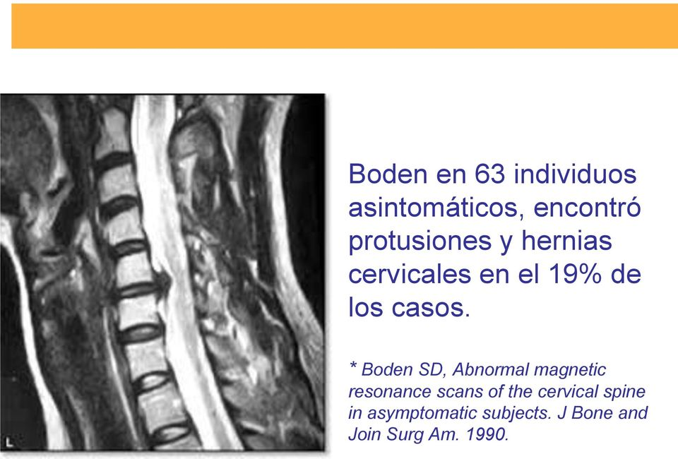 * Boden SD, Abnormal magnetic resonance scans of the