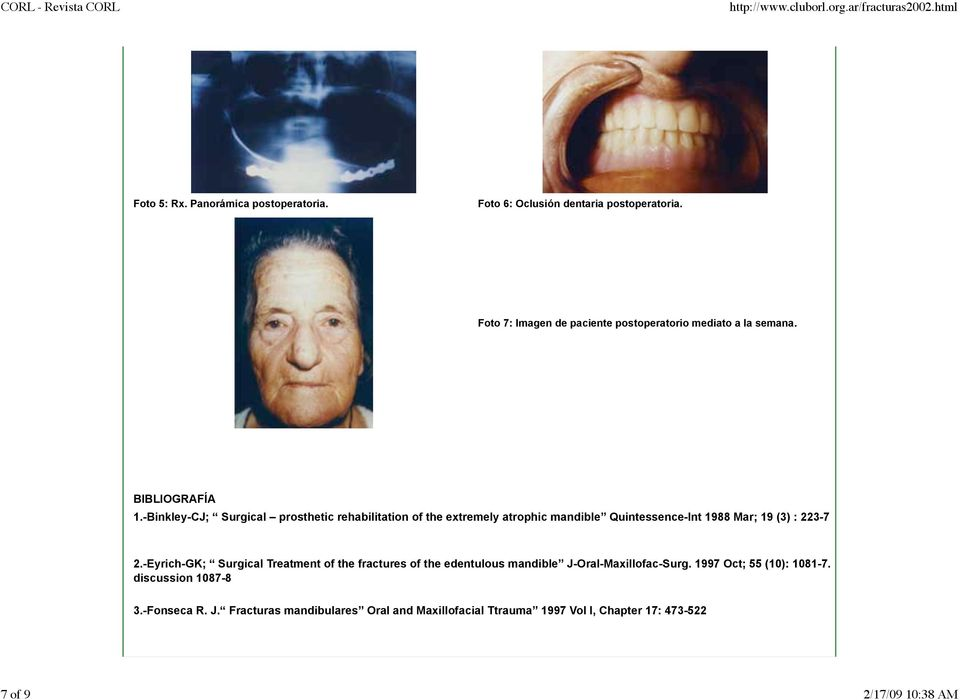 -Binkley-CJ; Surgical prosthetic rehabilitation of the extremely atrophic mandible Quintessence-Int 1988 Mar; 19 (3) : 223-7 2.