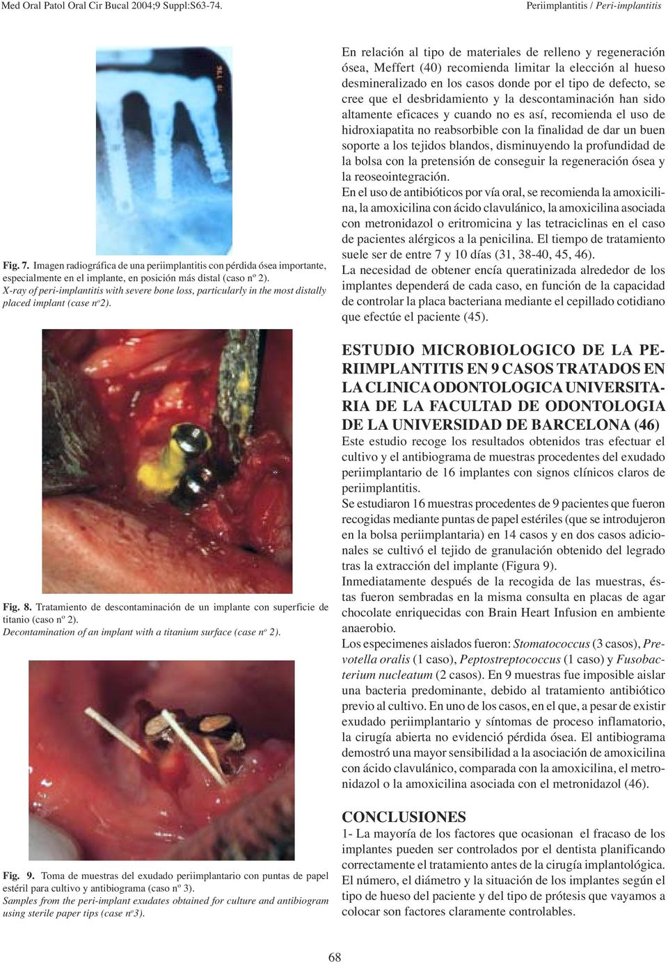 Tratamiento de descontaminación de un implante con superficie de titanio (caso nº 2). Decontamination of an implant with a titanium surface (case n o 2). Fig. 9.