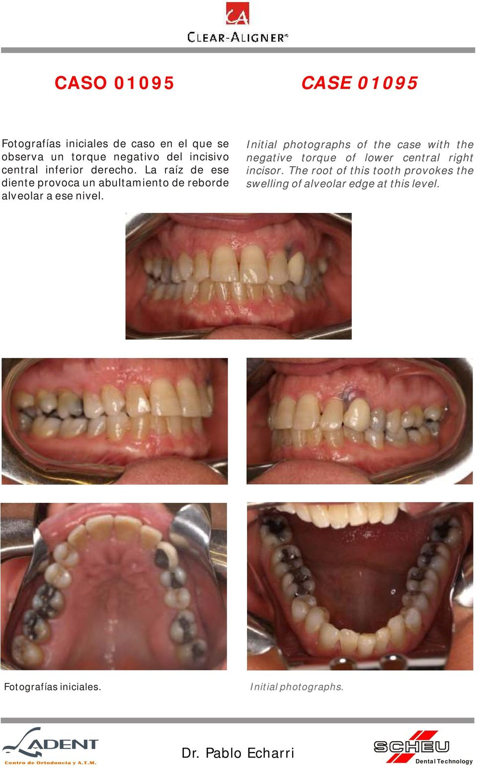 Initial photographs of the case with the negative torque of lower central right incisor.