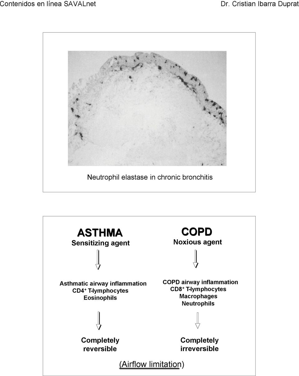 Eosinophils COPD airway inflammation CD8 + T-lymphocytes Macrophages
