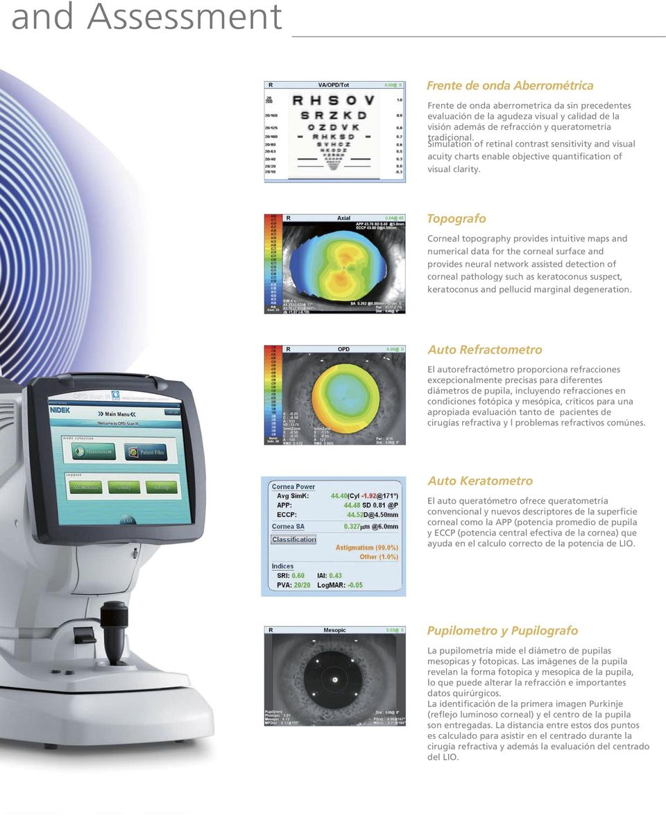 Topografo Corneal topography provides intuitive maps and numerical data for the corneal surface and provides neural network assisted detection of corneal pathology such as keratoconus suspect,