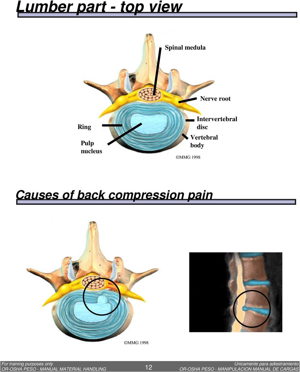 Vertebral body Causes of back compression pain