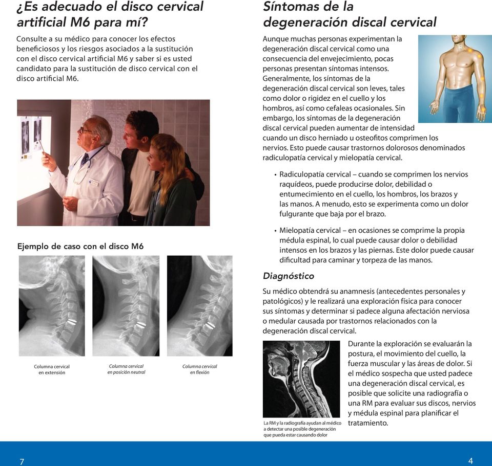 cervical con el disco artificial M6.