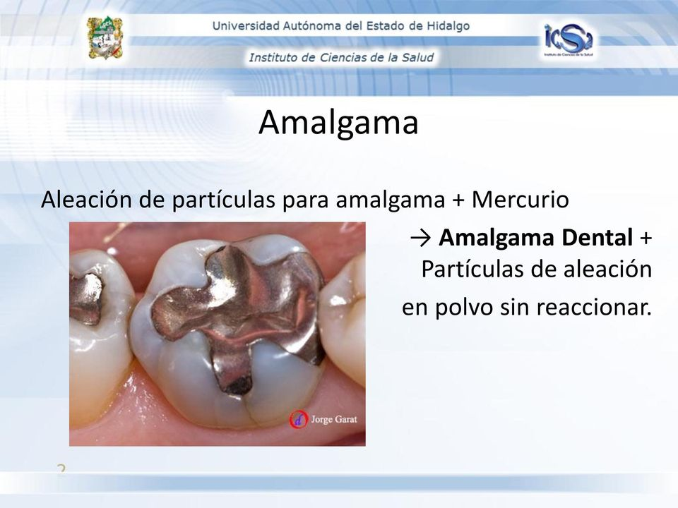 Mercurio Amalgama Dental +