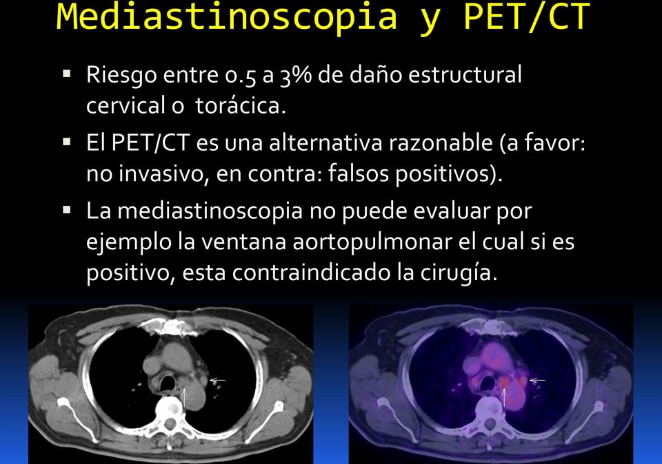 El PET/CT es una alternativa razonable (a favor: no invasivo, en contra: