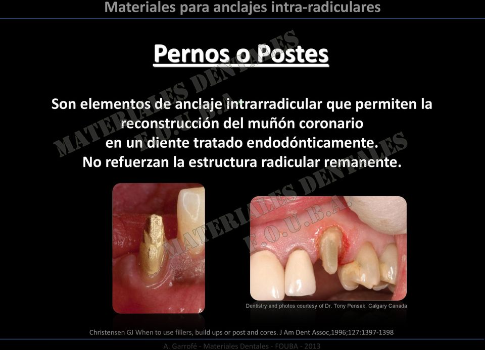 No refuerzan la estructura radicular remanente. Dentistry and photos courtesy of Dr.