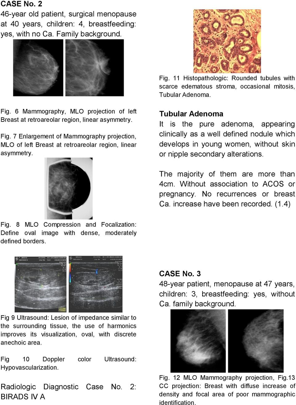 6 Mammography, MLO projection of left Breast at retroareolar region, linear asymmetry. Fig. 7 Enlargement of Mammography projection, MLO of left Breast at retroareolar region, linear asymmetry.