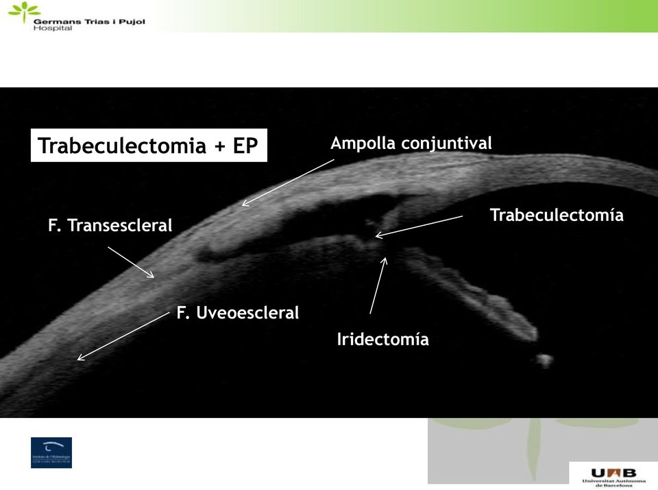 Transescleral