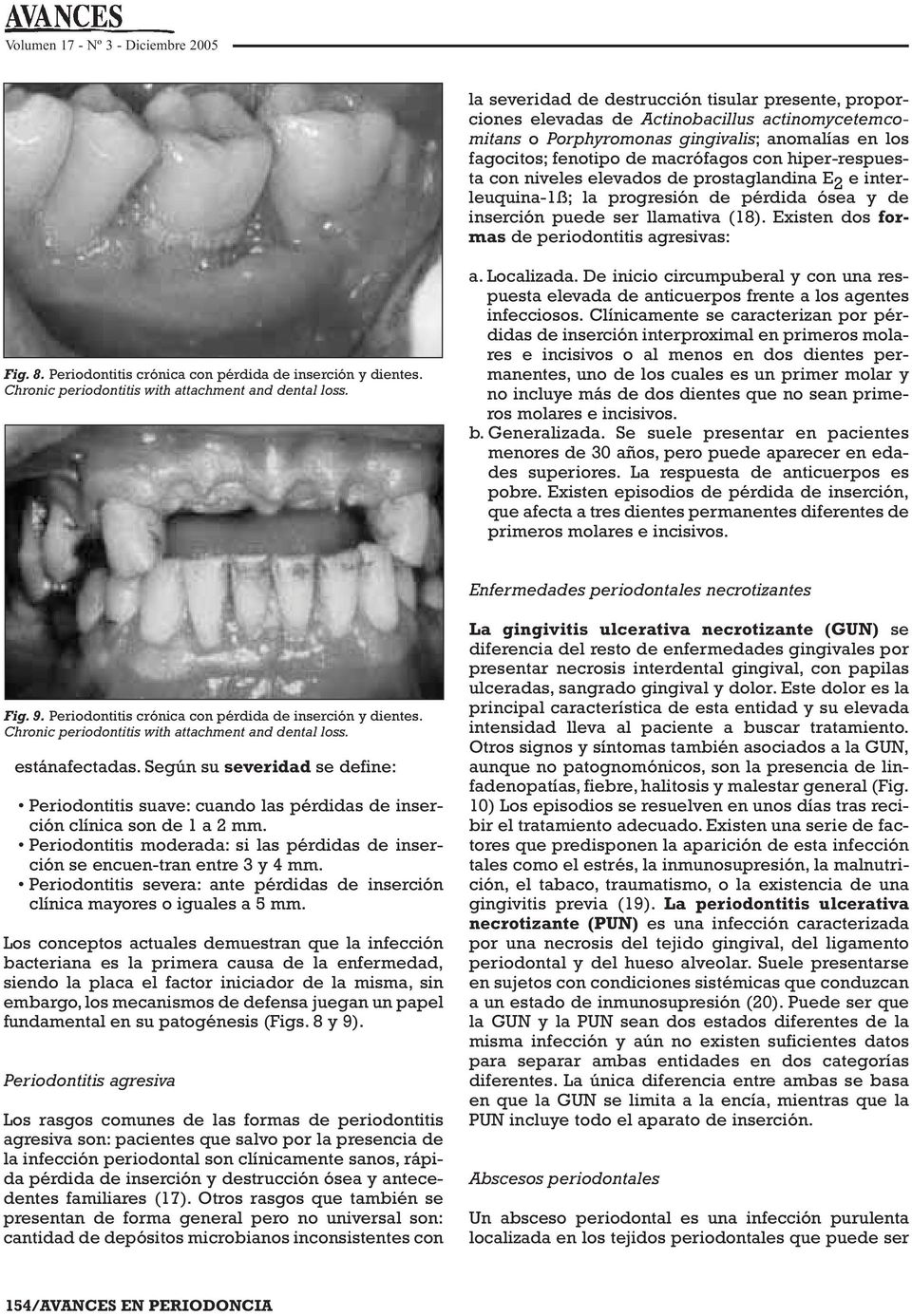 Existen dos formas de periodontitis agresivas: Fig. 8. Periodontitis crónica con pérdida de inserción y dientes. Chronic periodontitis with attachment and dental loss. a. Localizada.