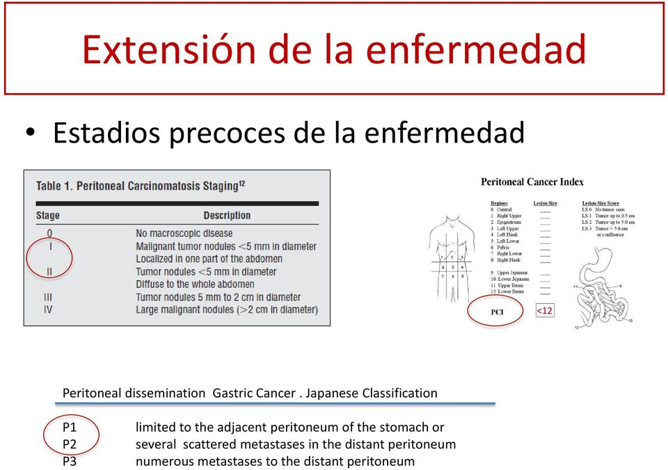 Japanese Classification P1 P2 P3 limited to the adjacent peritoneum of