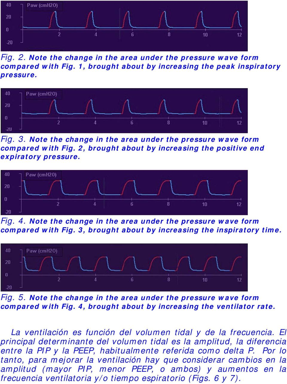 Note the change in the area under the pressure wave form compared with Fig. 3, brought about by increasing the inspiratory time. Fig. 5.