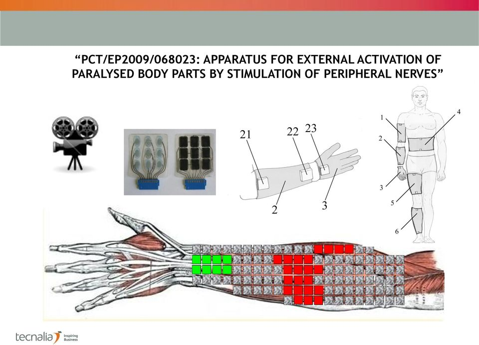ACTIVATION OF PARALYSED