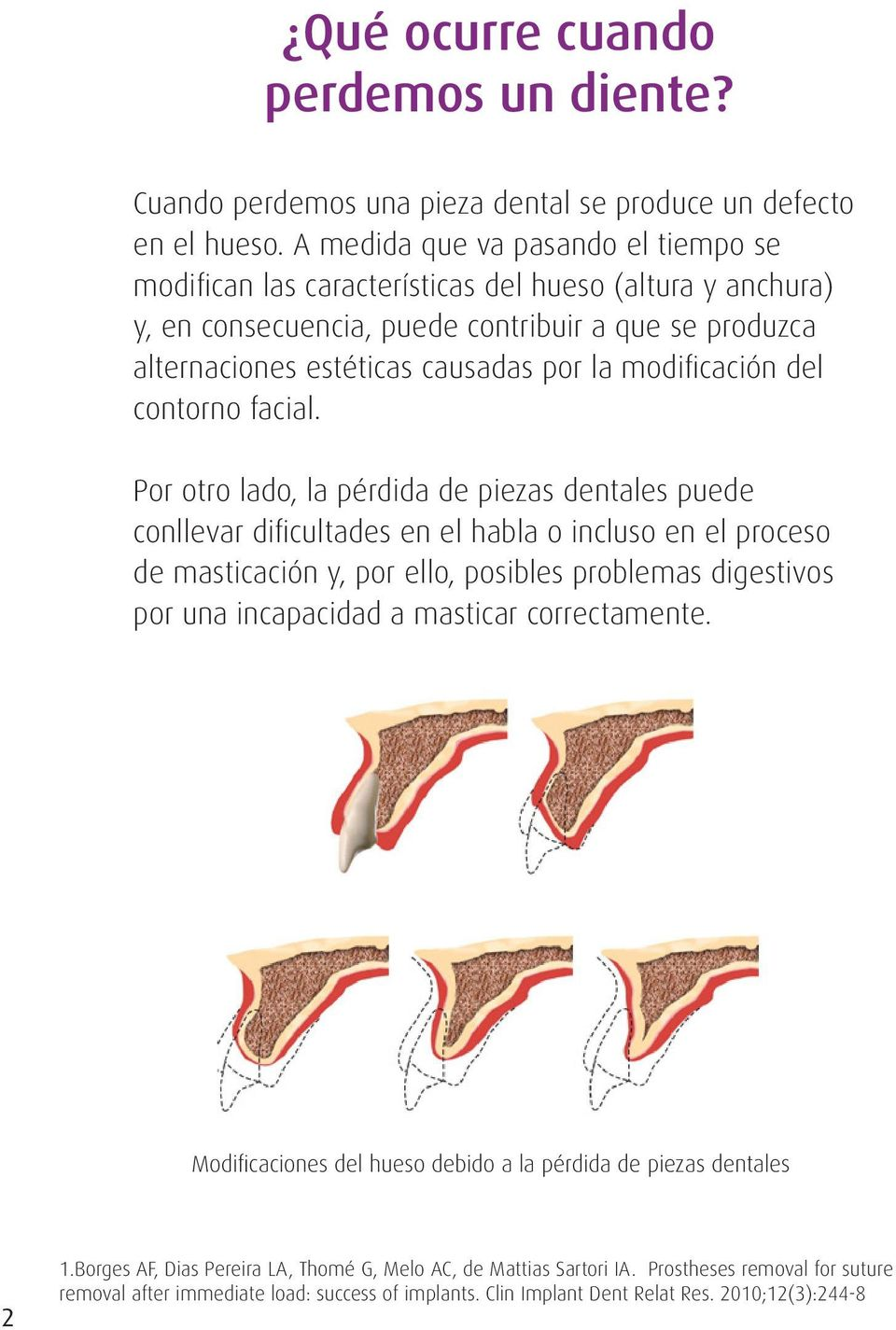 modificación del contorno facial.