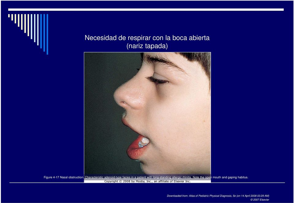 Characteristic adenoid-type facies in a patient with long-standing allergic