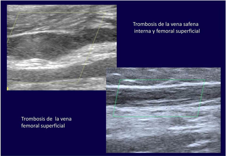 superficial  femoral