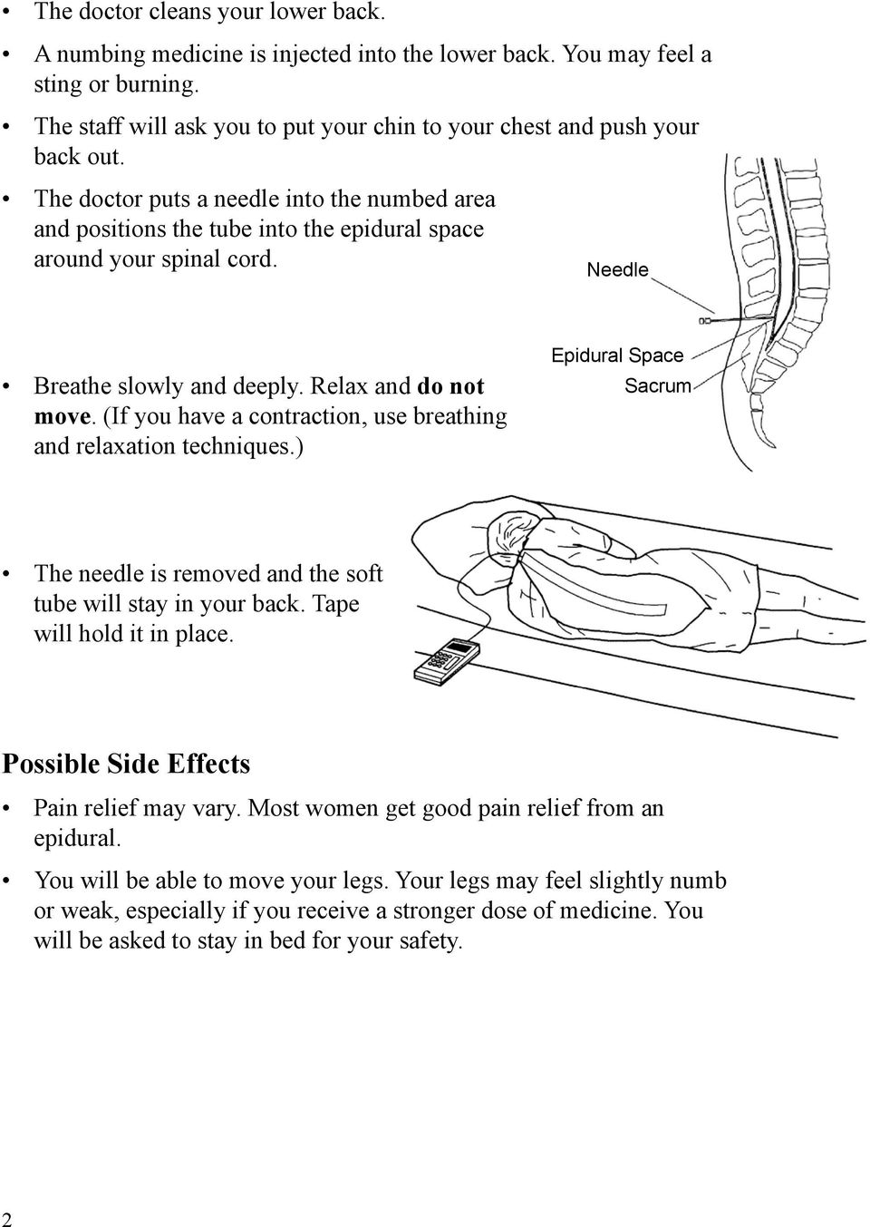 (If you have a contraction, use breathing and relaxation techniques.) Epidural Space Sacrum The needle is removed and the soft tube will stay in your back. Tape will hold it in place.