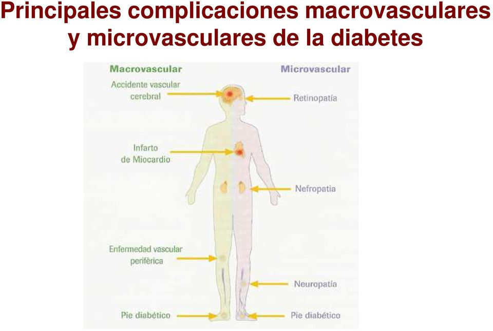 macrovasculares y