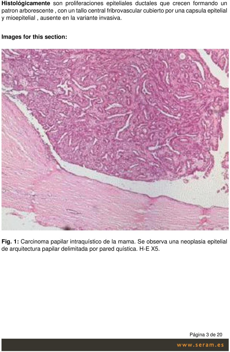 variante invasiva. Images for this section: Fig. 1: Carcinoma papilar intraquístico de la mama.