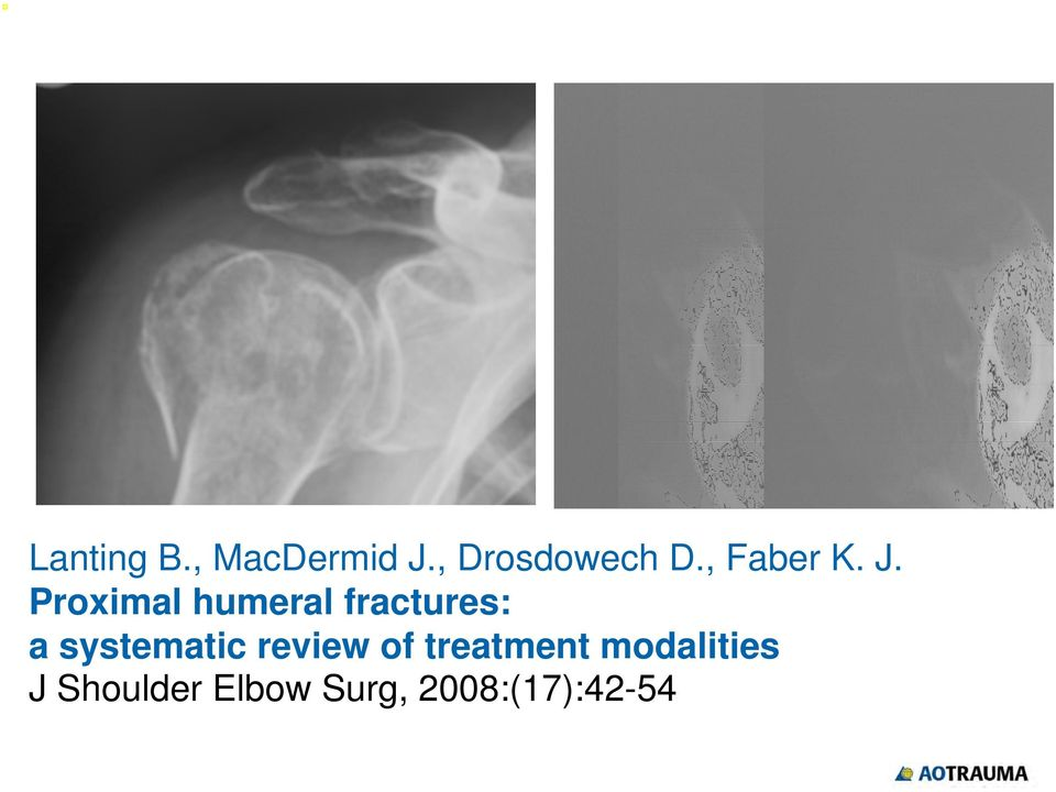 Proximal humeral fractures: a systematic