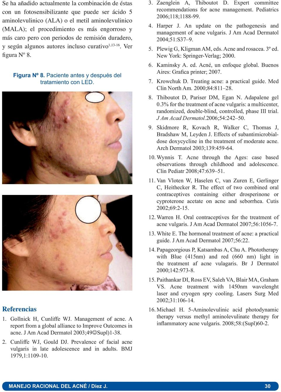 Gollnick H, Cunliffe WJ. Management of acne. A report from a global alliance to Improve Outcomes in acne. J Am Acad Dermatol 2003;49 Supl)1-38. 2. Cunliffe WJ, Gould DJ.
