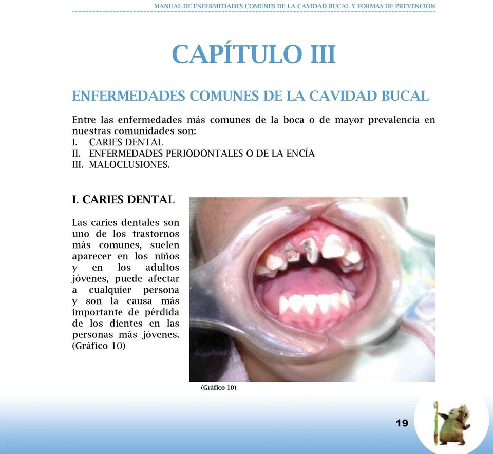 CARIES DENTAL II