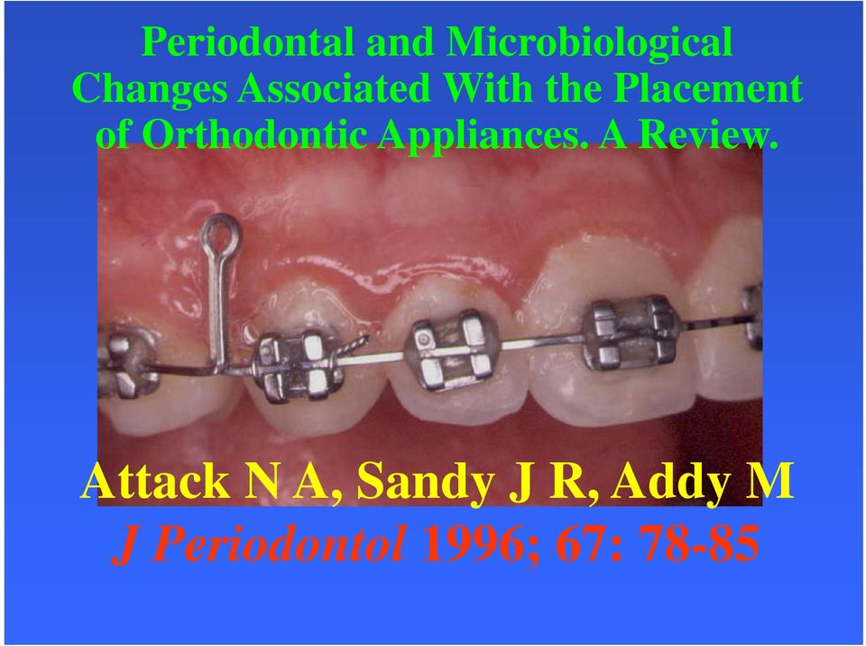 Orthodontic Appliances. A Review.