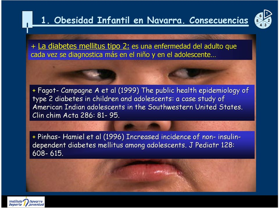 adolescente + Fagot- Campagne A et al l (1999) The public health epidemiology of type 2 diabetes in children and adolescents: : a case