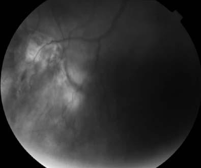 Conclusion: The diagnosis of giant nodular posterior scleritis was made by clinical findings with imaging tests, but especially by the dramatic improvement experienced by the patient when receiving