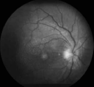 RAMOS FERNÁNDEZ C, et al. SUMMARY Introduction: Chronic relapsing inflammatory optic neuropathy is a form of isolated uncommon inflammatory optic neuropathy.