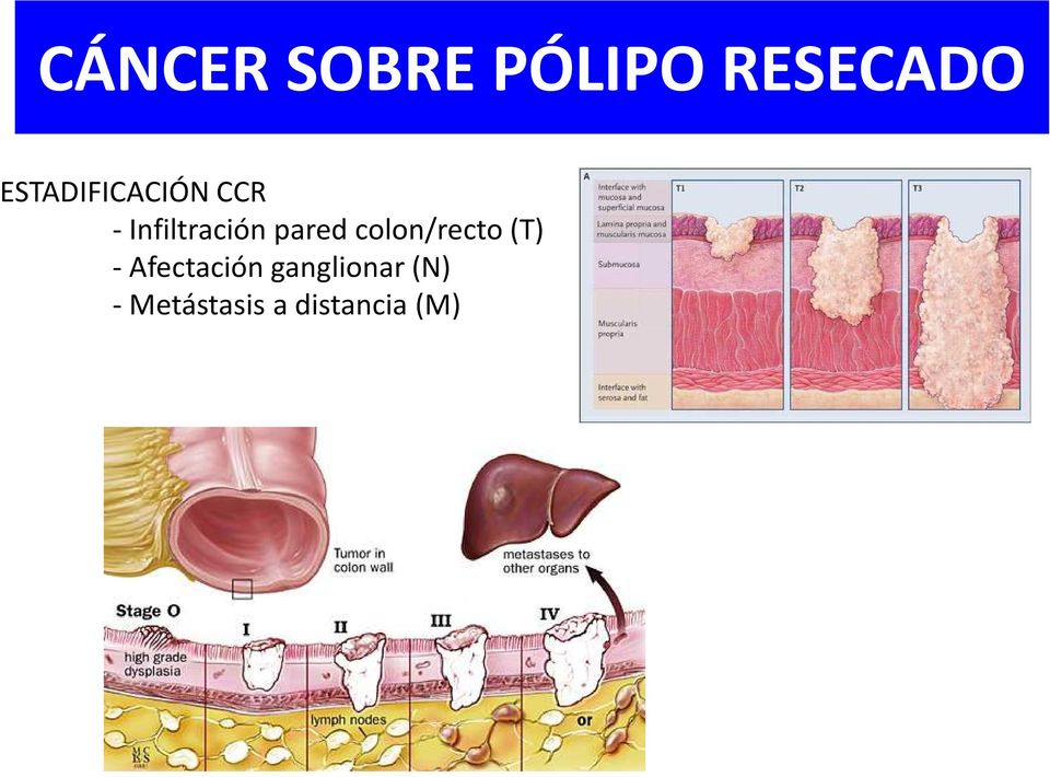 colon/recto (T) -